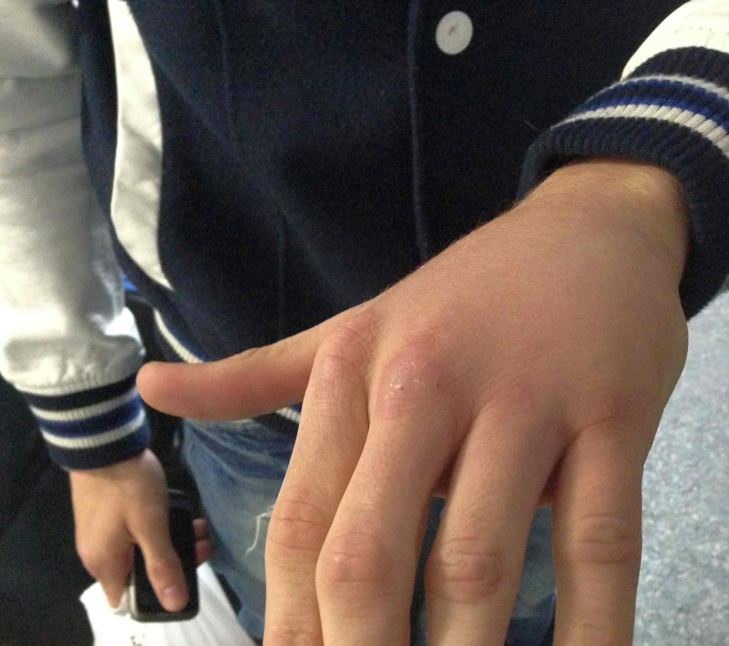 Boxeo: Estado de la mano de Kerman Lejarraga antes de pasar por la consulta