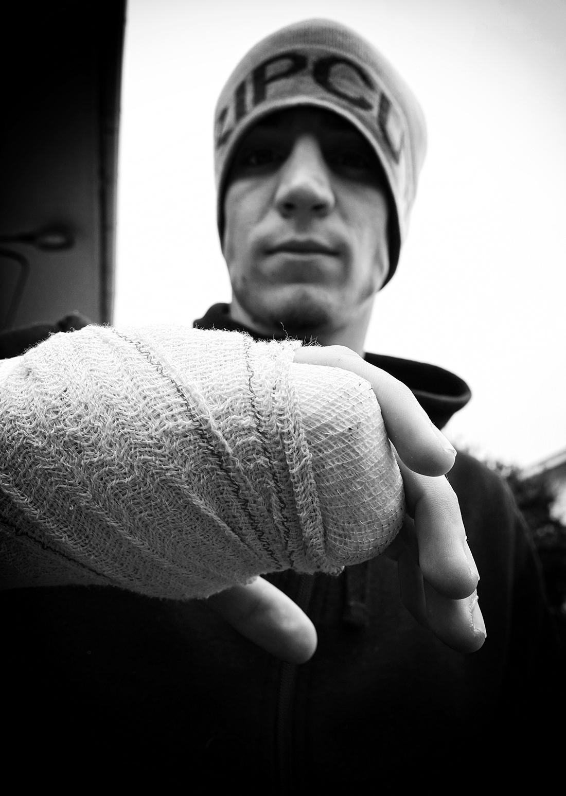 Foto de la inmovilización de la mano derecha de Kerman Lejarraga (IÑAKI MENDIZABAL)