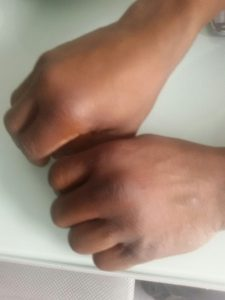 Boxeo Gasteiz : Las manos de Nacho Mendoza tras su enfrentamiento con Juan Ocura en Ordizia
